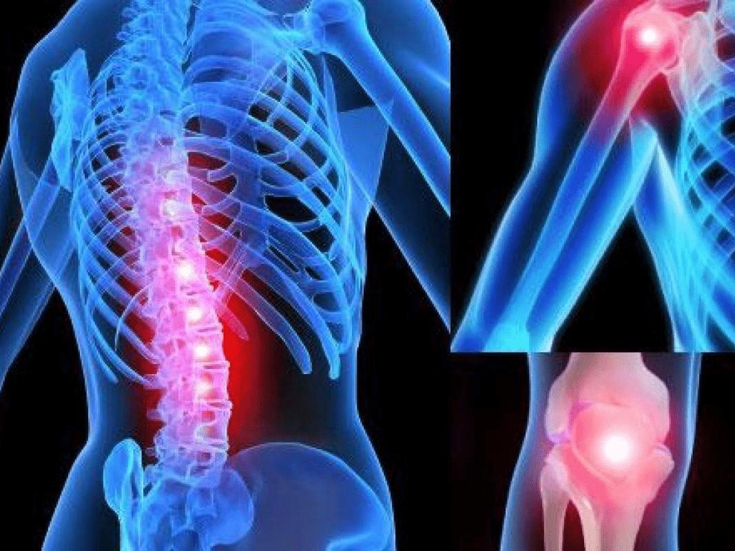 Защо ни болят ставите? Причини, лечение и профилактика
