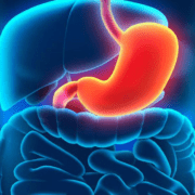 Терапевтична диета номер 1. Правила за хранене при гастрит и язва на стомаха