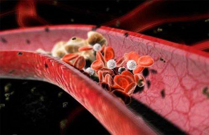 Средства за разбиване на тромби и съсиреци в кръвоносните съдове